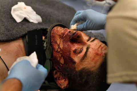 Medical Teams Treat Battle Wounded At New Kandahar Military Hospital